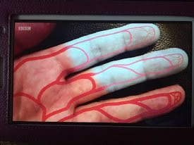 Raynaud's disease gloves and hand care tips.